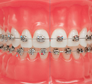 Dental Braces in Hyderabad