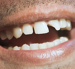 Broken Tooth Repair