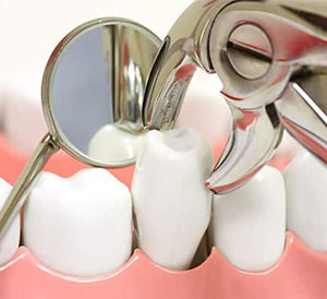 Tooth Extraction Service in Hyderabad