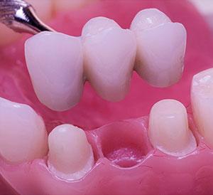 Dental Bridges in Hyderabad