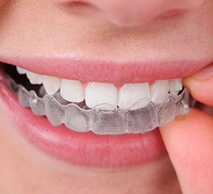 Invisible Aligners in Hyderabad