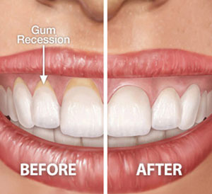 Gum Plastic Surgery in Hyderabad