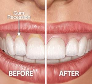 Gum Plastic Surgery in Hyderabad