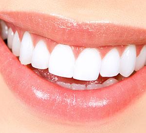 Teeth Whitening Treatment in Hyderabad