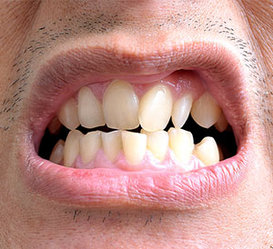 Crooked Teeth Treatment