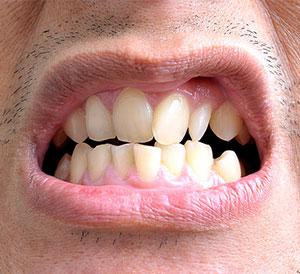 Crooked Teeth Treatment