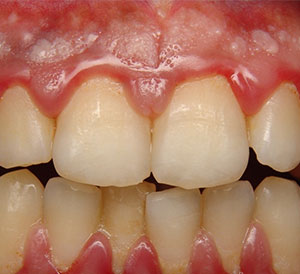 Swollen Gums Treatment in Hyderabad