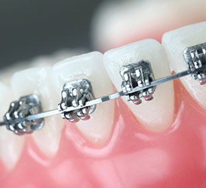 Orthodontics in Hyderabad