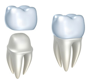 Dental Crown Treatment In Hyderabad