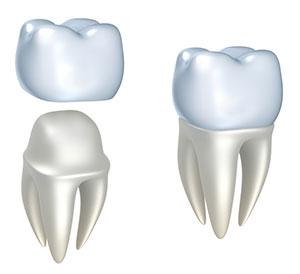 dental crown hyderabad