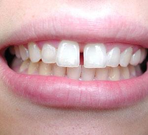 Teeth Gaps Treatment in Hyderabad