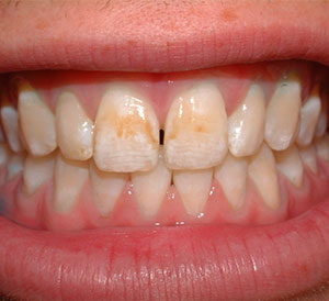 Teeth Discoloration Treatment