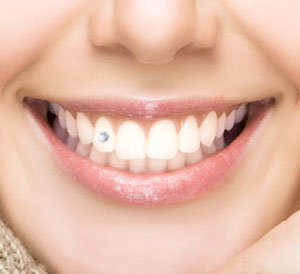 Teeth Jewelry Service in Hyderabad